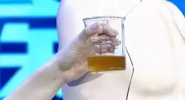 为什么多喝水可以预防肾结石的证明
